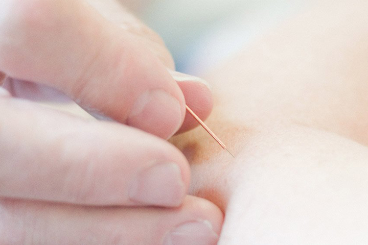 Acupuncture Services in Coventry